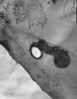 Ультраструктура клеток некоторых накопительных культур метанотрофов